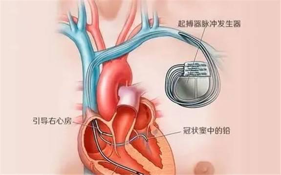韩国研发太阳能充电心脏起搏器